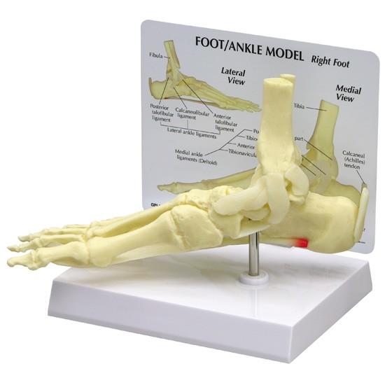 Foot/Ankle - Plantar Fasciitis