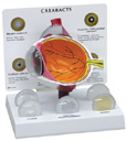 Cataract Eye 280
