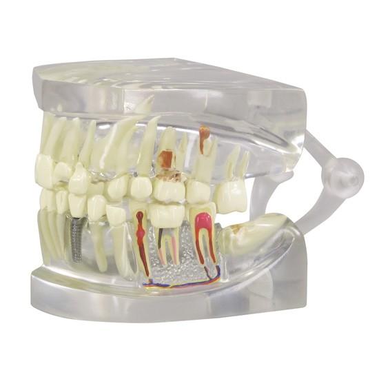 Clear Human Jaw W/ Teeth